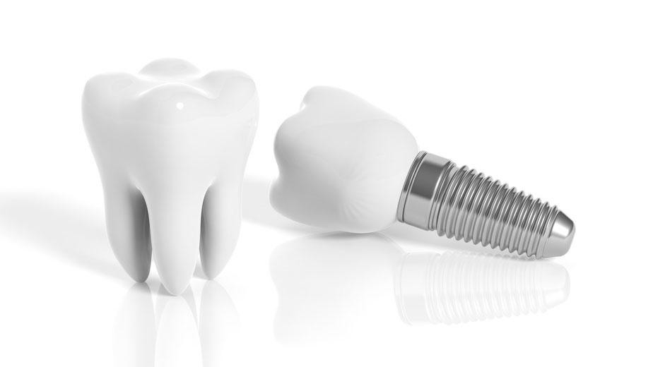 Zahnmaennle--dr-maennle-zahnarzt--implantologe-hamburg-wandsbek-gartenstadt-zahnimplantat--faire-preise--samstag-termin--