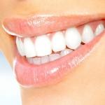 zahnmaennle-Schonende-Zahnaufhellung-mit-einer-professionellen-Zahnreinigung-pzr,-zu-einem-günstigen-Preis.-zahnarzt-dr-maennle-hamburg-wandsbek-gartenstadt.